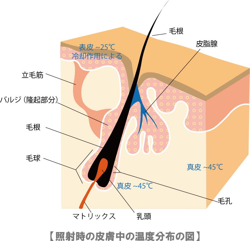 照射時の皮膚中の温度分布の図